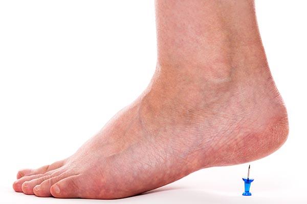 peripheral-neuropathy-foot-pin