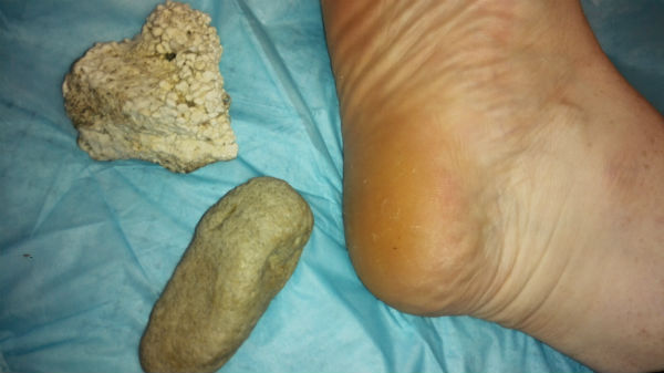 natural-resources-to-smooth-feet